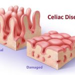 Celiac Disease: Signs, Symptoms and Treatment